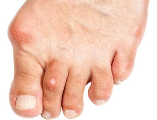como se cura el acido urico en los pies dietas para eliminar el acido urico te para bajar acido urico
